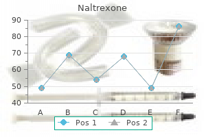 naltrexone 50 mg overnight delivery